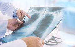 がん検診の「デメリット」――実はかなりの割合でがんが見逃されているという問題